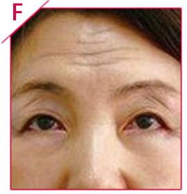 45岁 抬头纹 口角纹