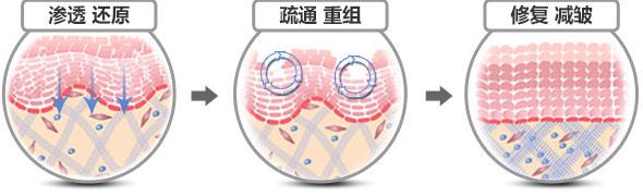 重组内部纤维架构